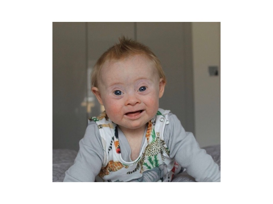 Down's Syndrome Awareness Month 2019!